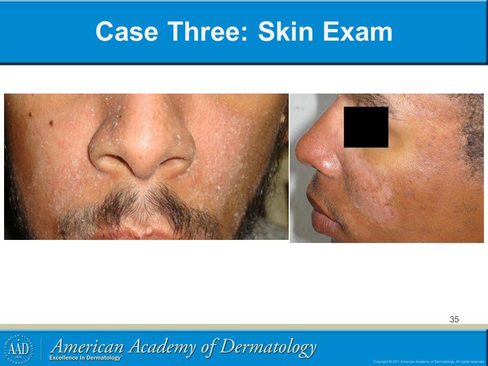 Case Three: Skin Exam