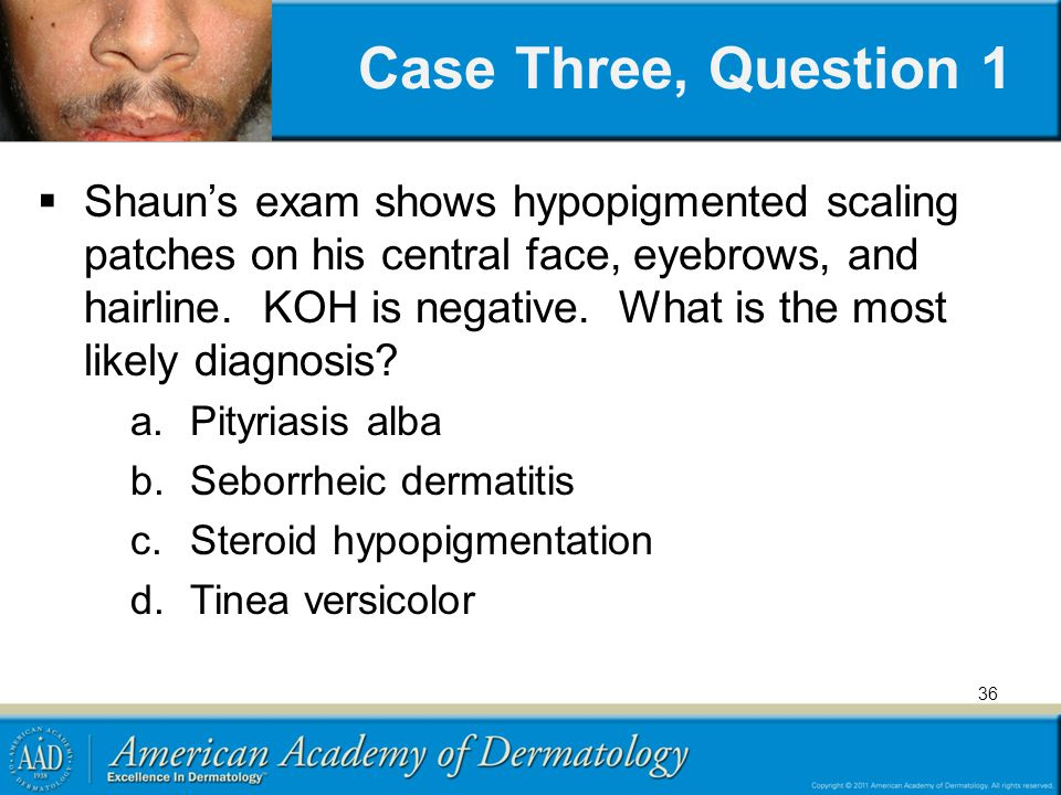 Case Three, Question 1