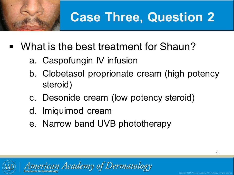 Case Three, Question 2 What is the best treatment for Shaun