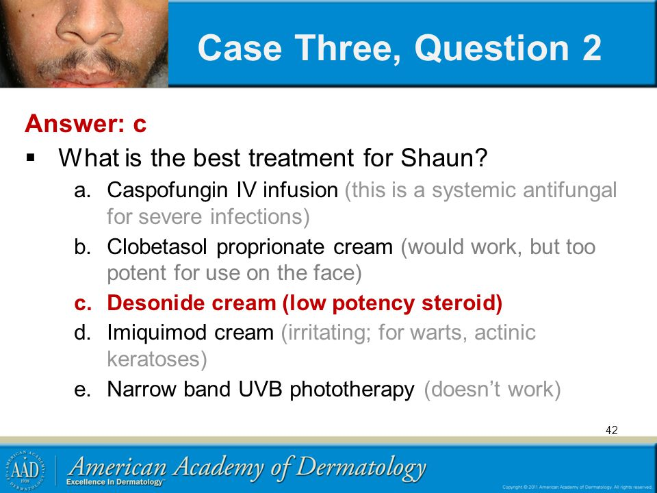 Case Three, Question 2 Answer: c What is the best treatment for Shaun
