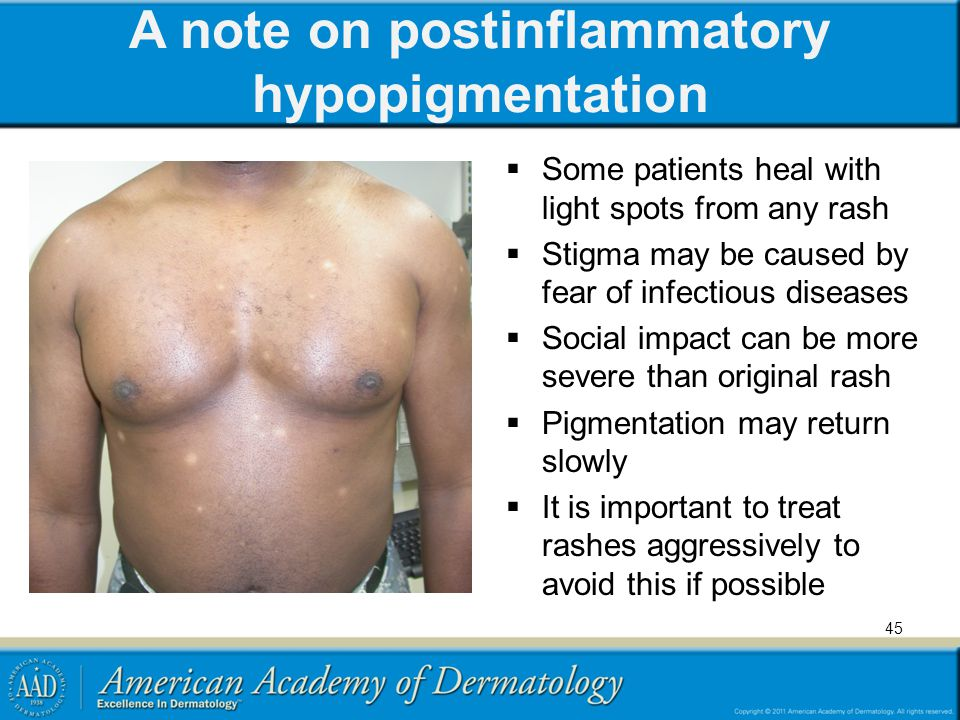 A note on postinflammatory hypopigmentation