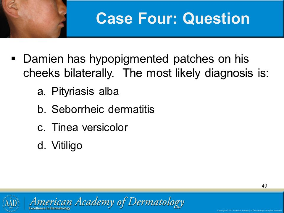 Case Four: Question Damien has hypopigmented patches on his cheeks bilaterally. The most likely diagnosis is:
