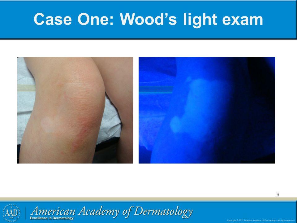 Case One: Wood's light exam