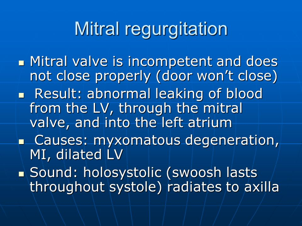 Mitral regurgitation Mitral valve is incompetent and does not close properly (door won't close)