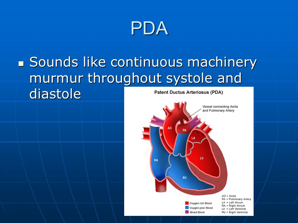 PDA Sounds like continuous machinery murmur throughout systole and diastole