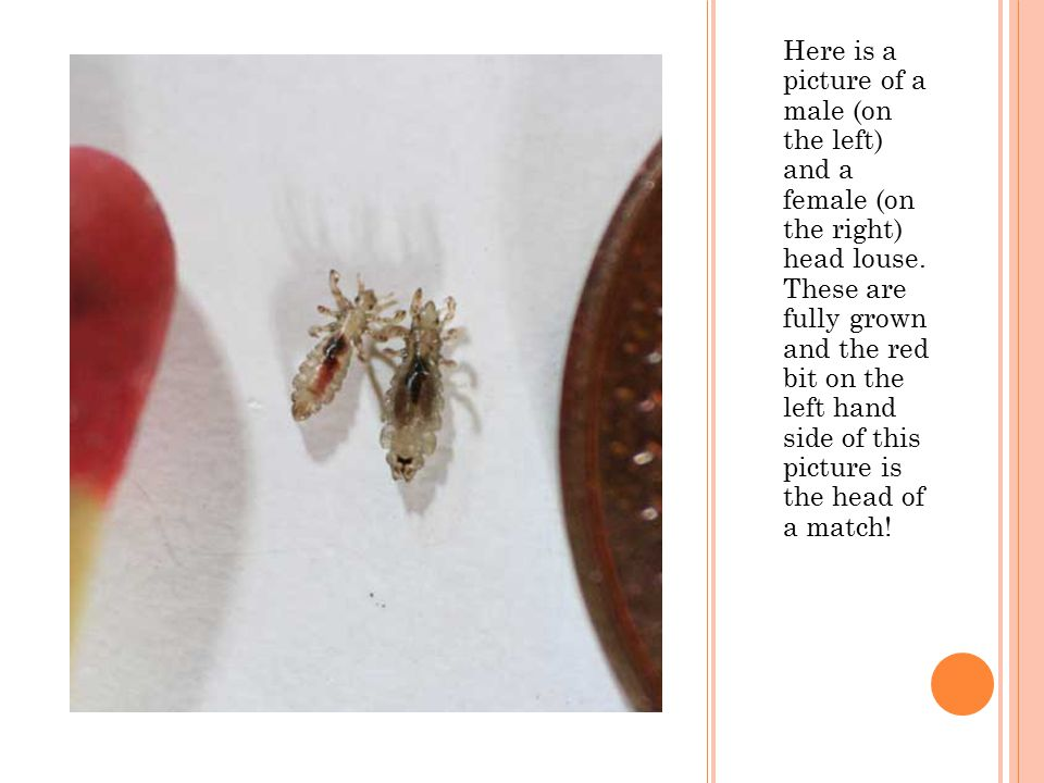 Here is a picture of a male (on the left) and a female (on the right) head louse.