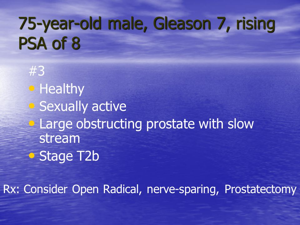75-year-old male, Gleason 7, rising PSA of 8