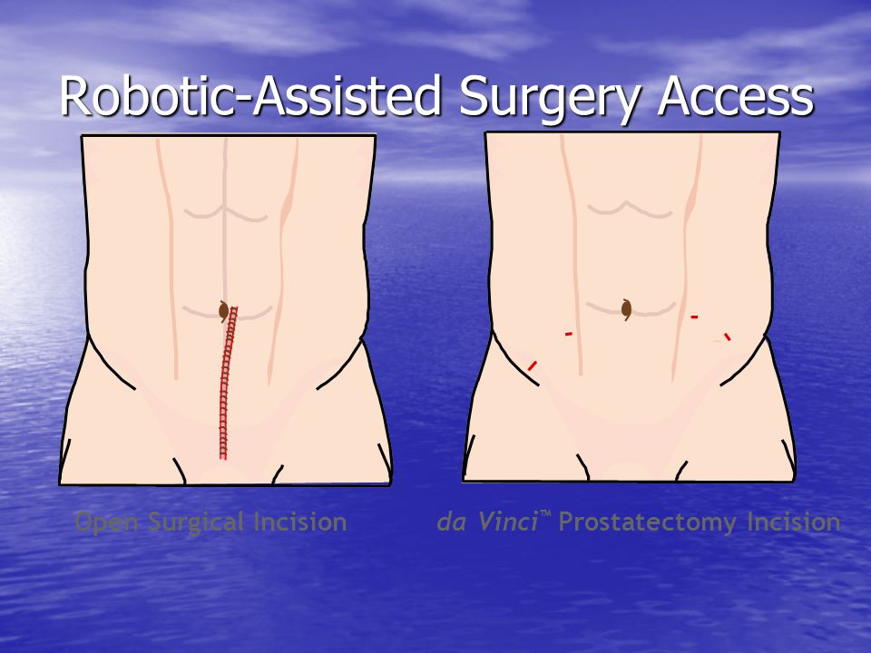 Robotic-Assisted Surgery Access