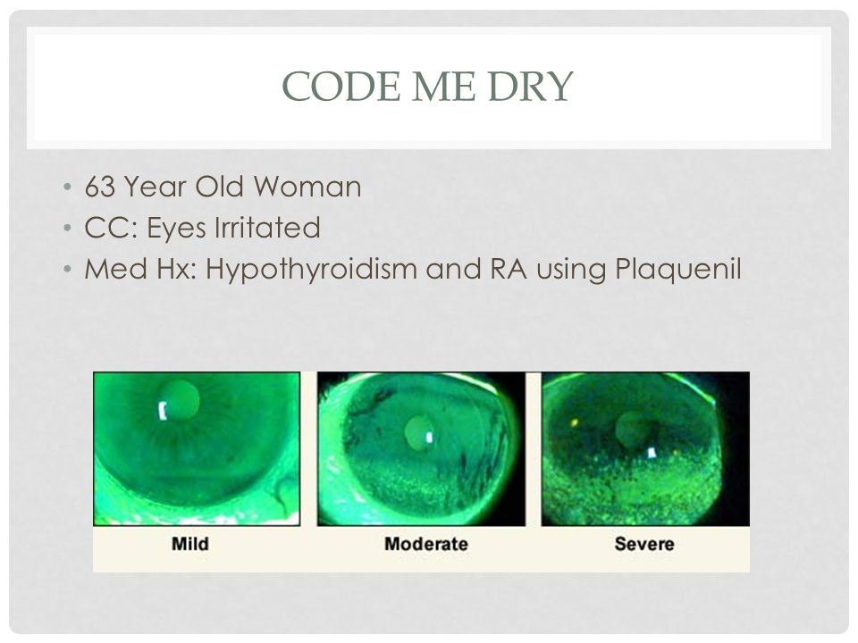 Code Me Dry 63 Year Old Woman CC: Eyes Irritated