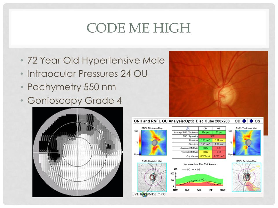 Code Me High 72 Year Old Hypertensive Male Intraocular Pressures 24 OU