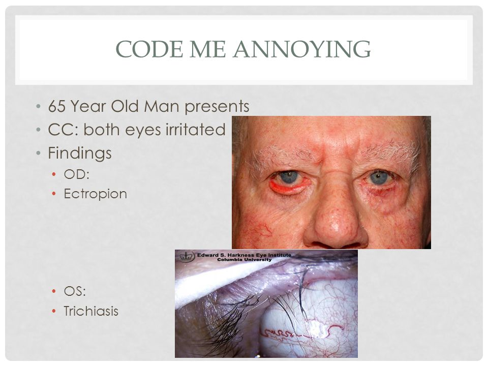 Code Me Annoying 65 Year Old Man presents CC: both eyes irritated