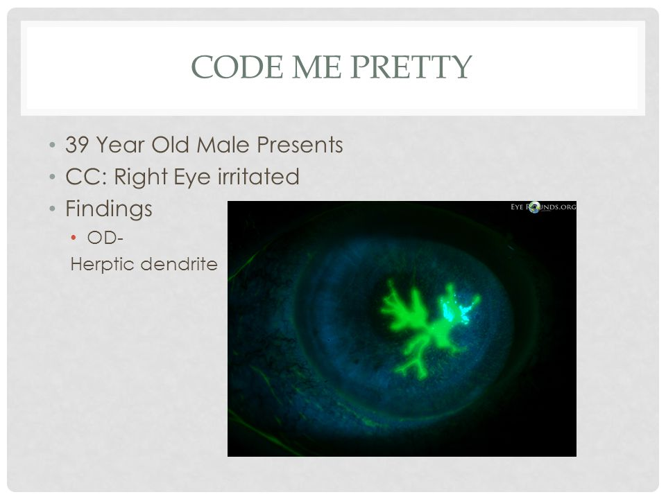 Code Me Pretty 39 Year Old Male Presents CC: Right Eye irritated