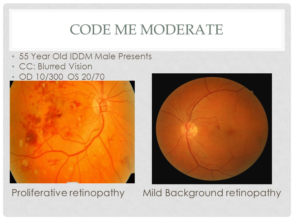 Code Me Moderate Proliferative retinopathy Mild Background retinopathy