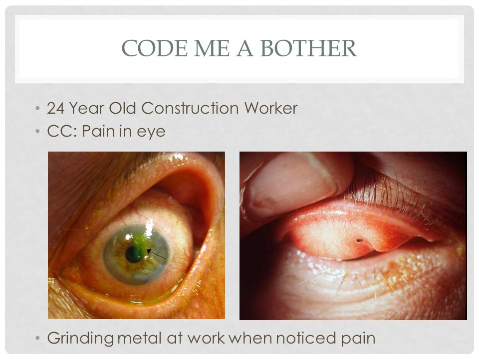 Code Me A Bother 24 Year Old Construction Worker CC: Pain in eye