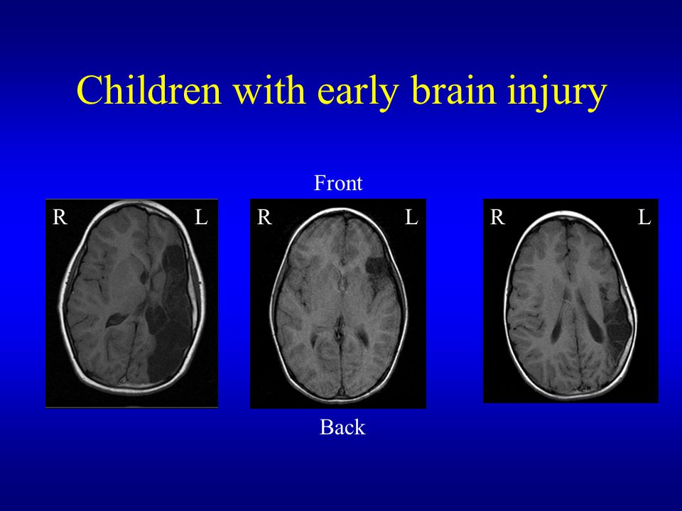 Children with early brain injury