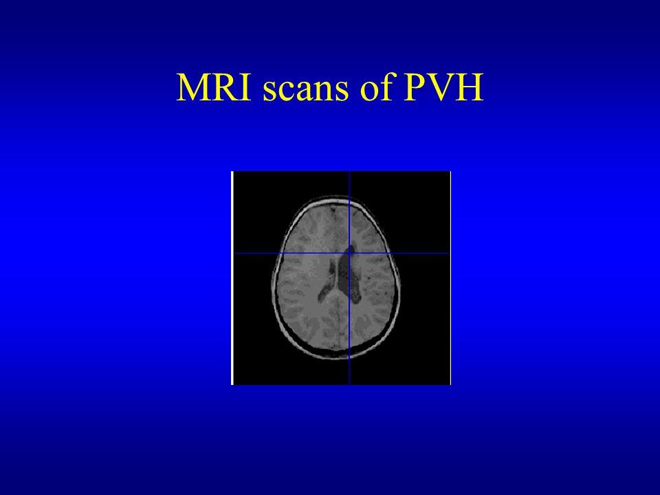 MRI scans of PVH