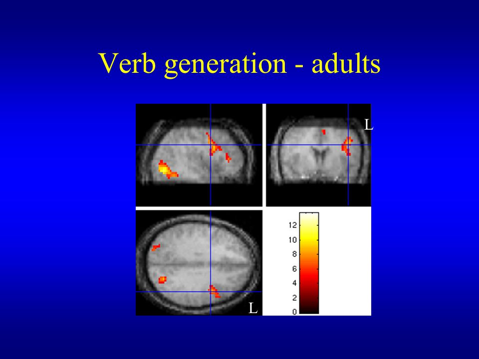 Verb generation - adults