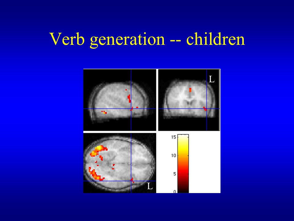 Verb generation -- children