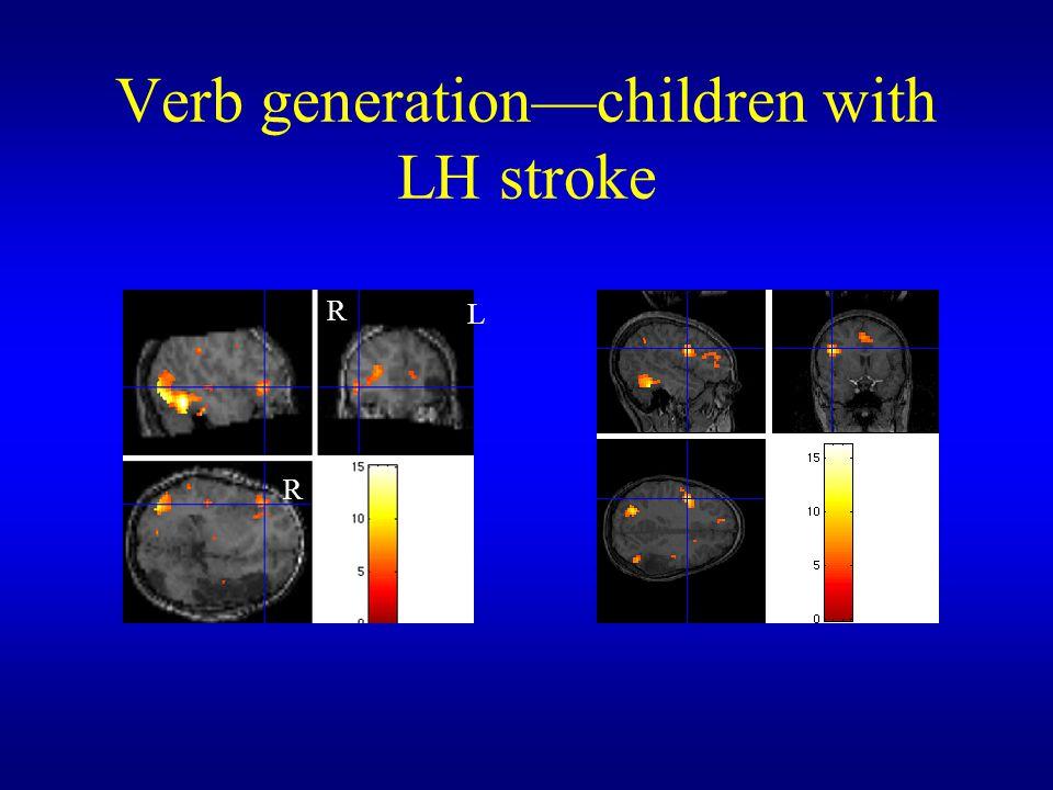 Verb generation—children with LH stroke