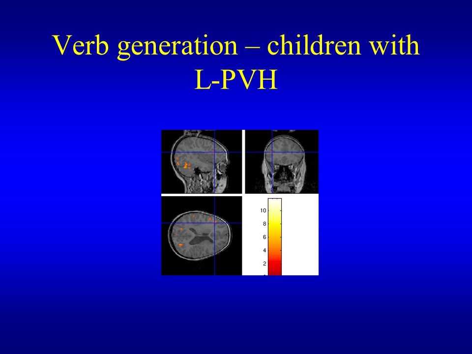 Verb generation – children with L-PVH