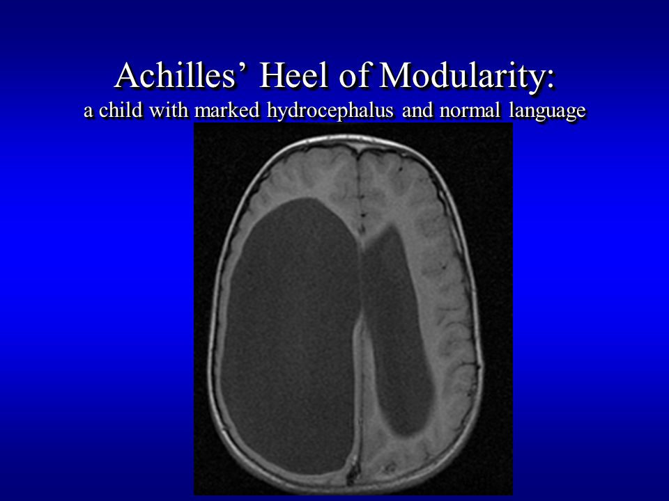 Achilles' Heel of Modularity: a child with marked hydrocephalus and normal language