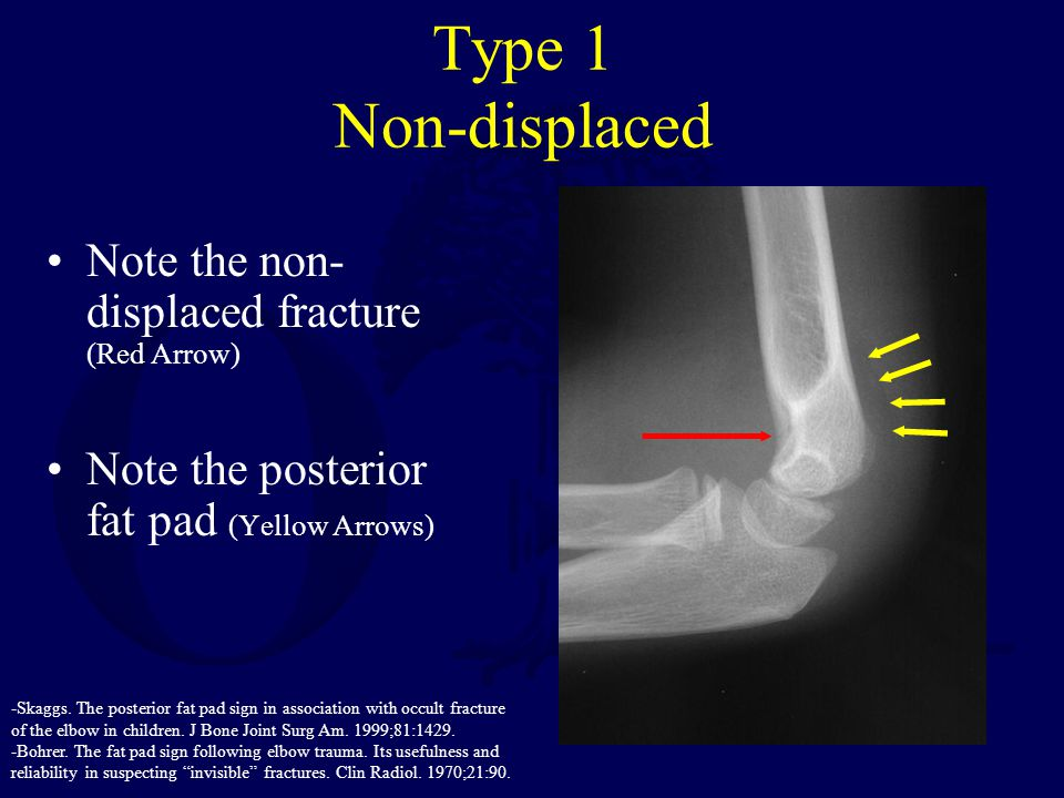 Type 1 Non-displaced Note the non- displaced fracture (Red Arrow)