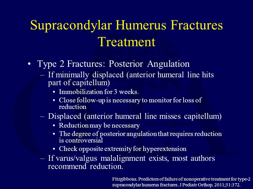 Supracondylar Humerus Fractures Treatment