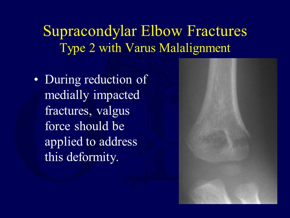 Supracondylar Elbow Fractures Type 2 with Varus Malalignment