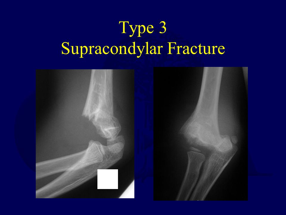 Type 3 Supracondylar Fracture