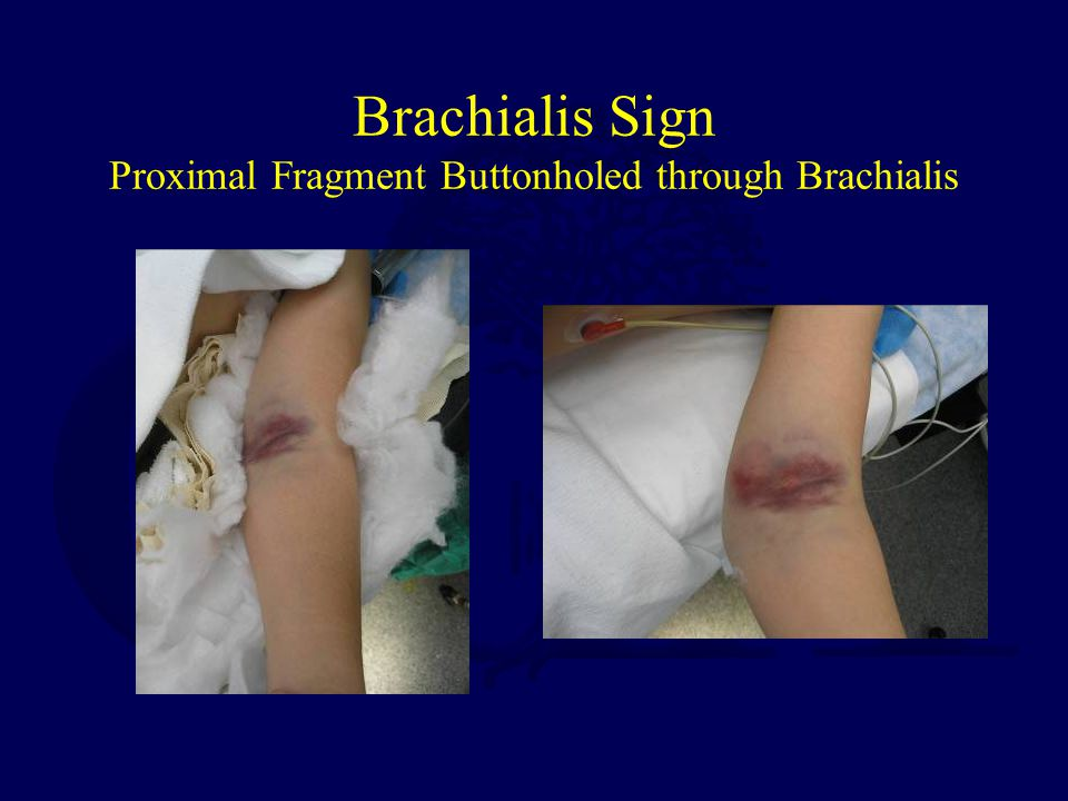 Brachialis Sign Proximal Fragment Buttonholed through Brachialis