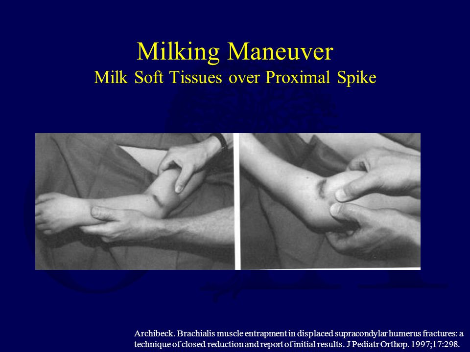 Milking Maneuver Milk Soft Tissues over Proximal Spike