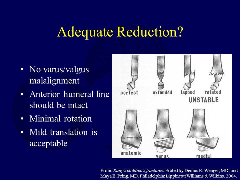 Adequate Reduction No varus/valgus malalignment