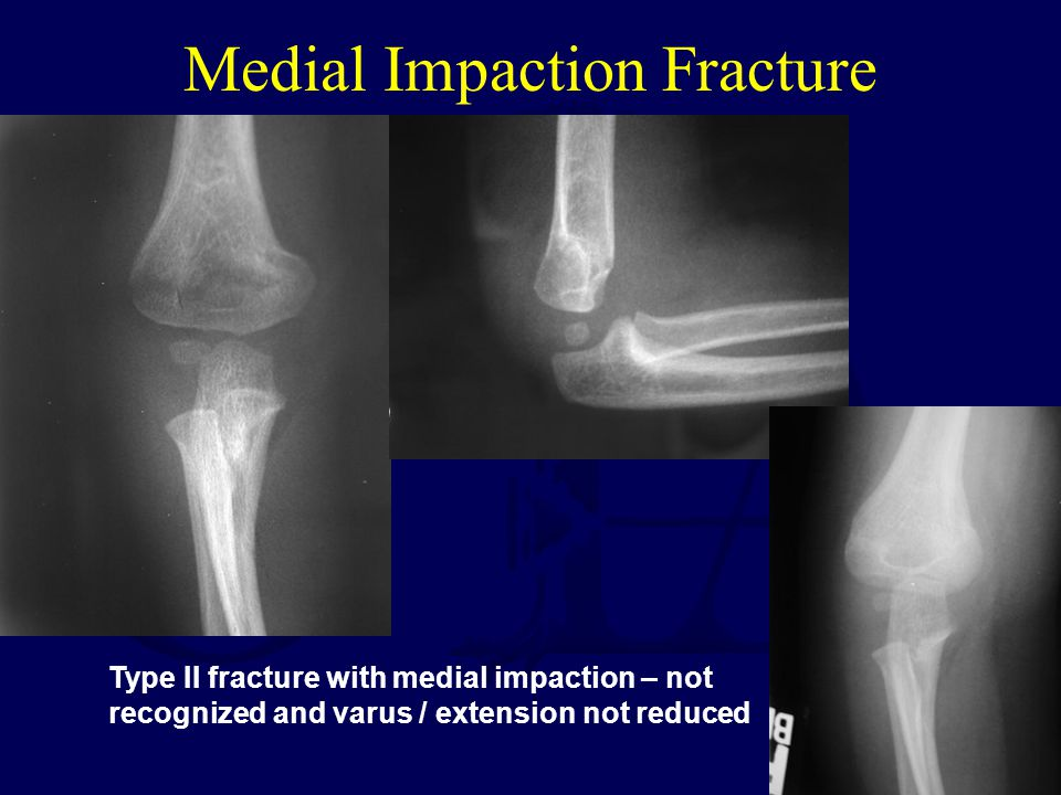 Medial Impaction Fracture