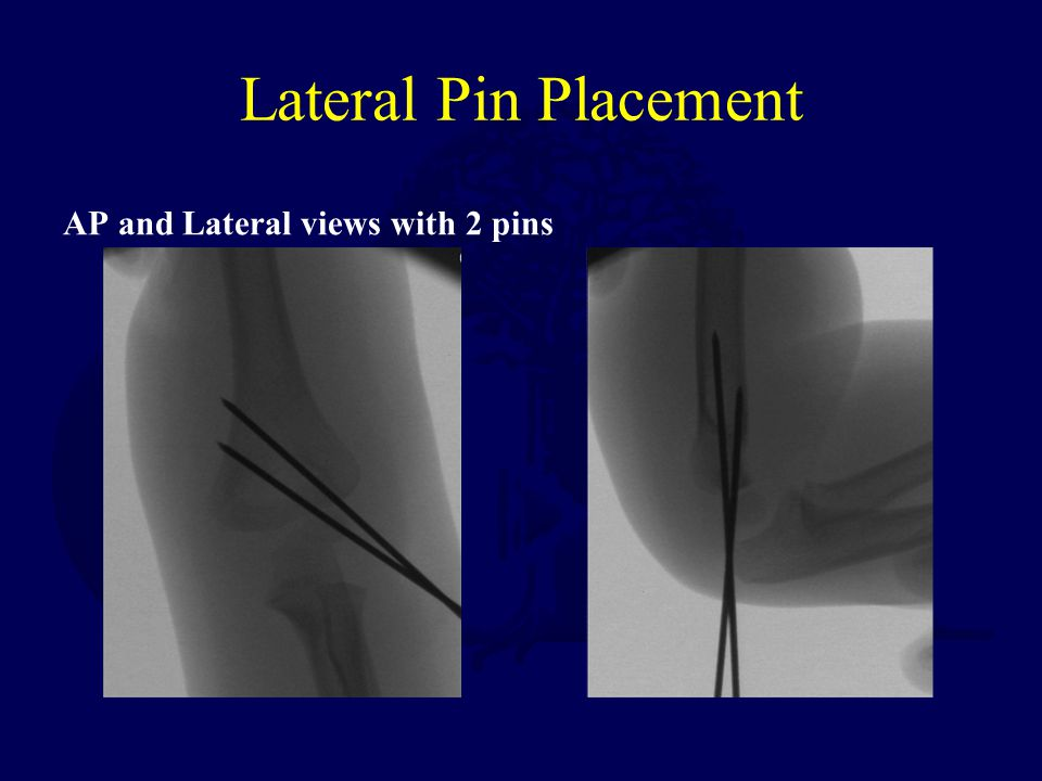 Lateral Pin Placement AP and Lateral views with 2 pins
