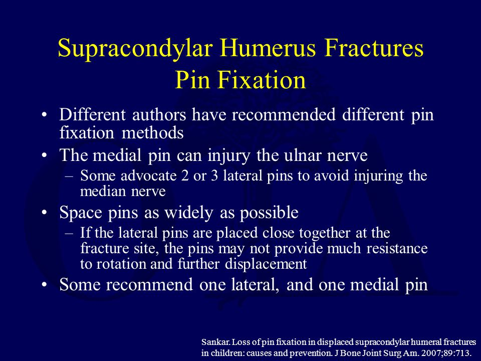 Supracondylar Humerus Fractures Pin Fixation