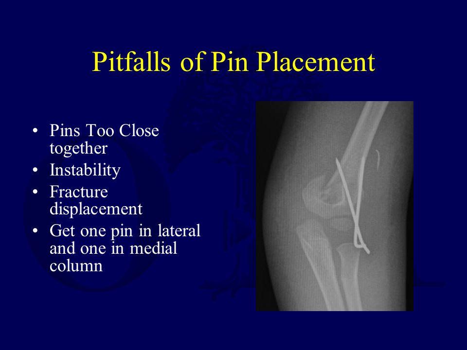 Pitfalls of Pin Placement