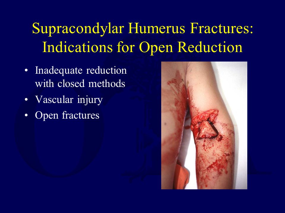 Supracondylar Humerus Fractures: Indications for Open Reduction