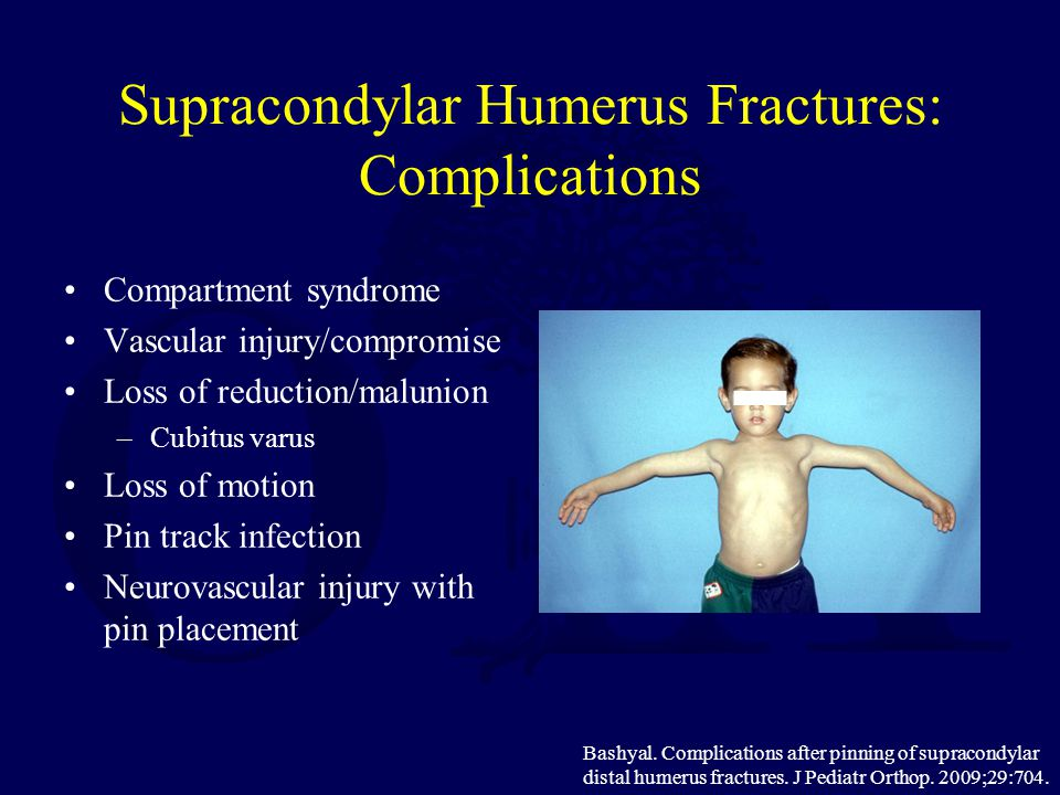 Supracondylar Humerus Fractures: Complications