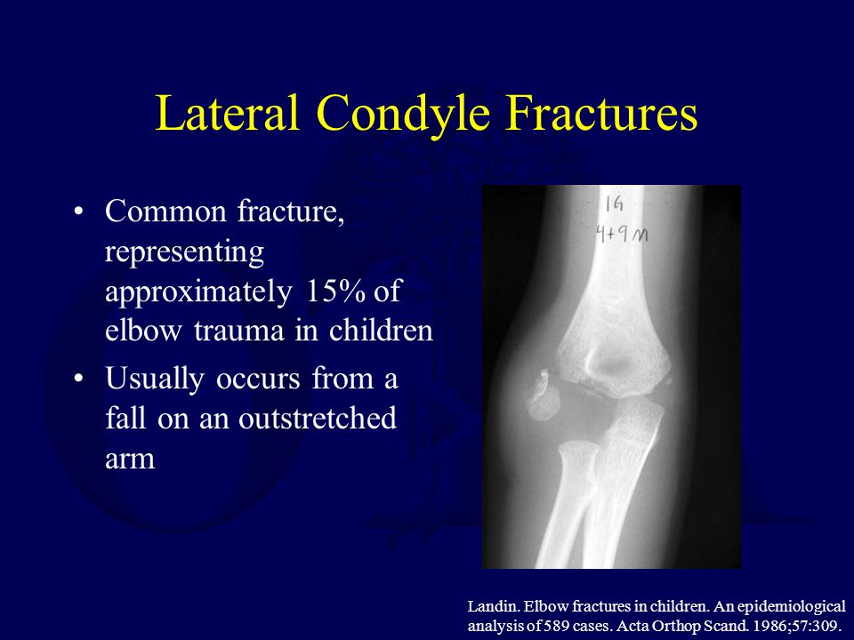 Lateral Condyle Fractures