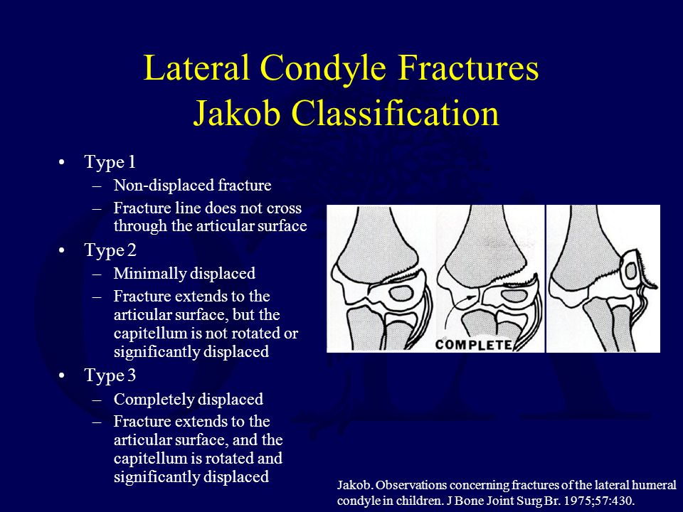 Lateral Condyle Fractures Jakob Classification