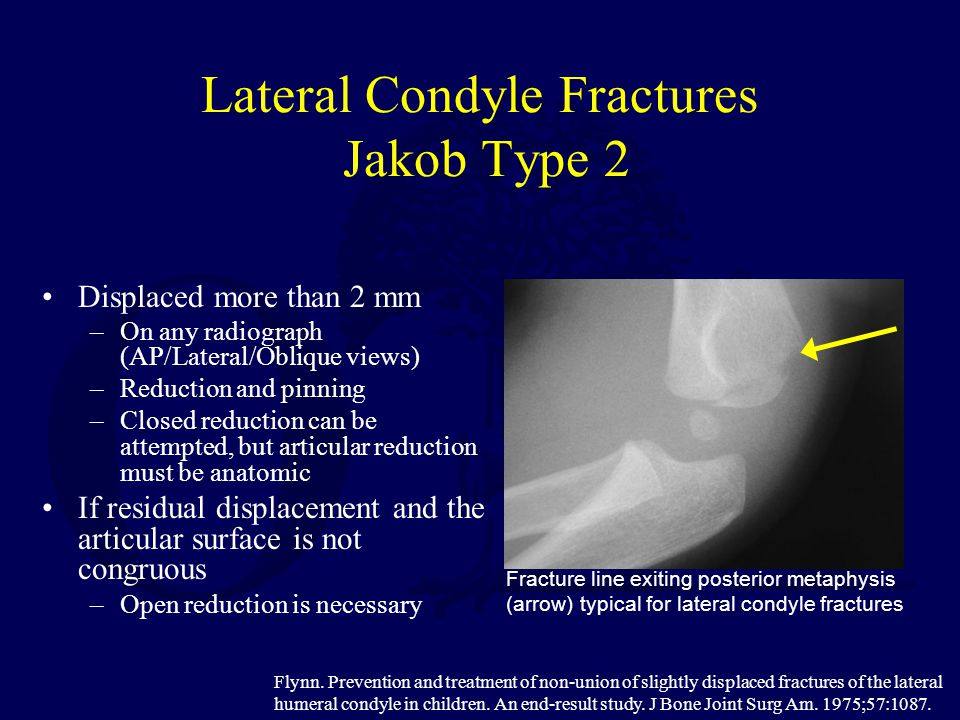 Lateral Condyle Fractures Jakob Type 2