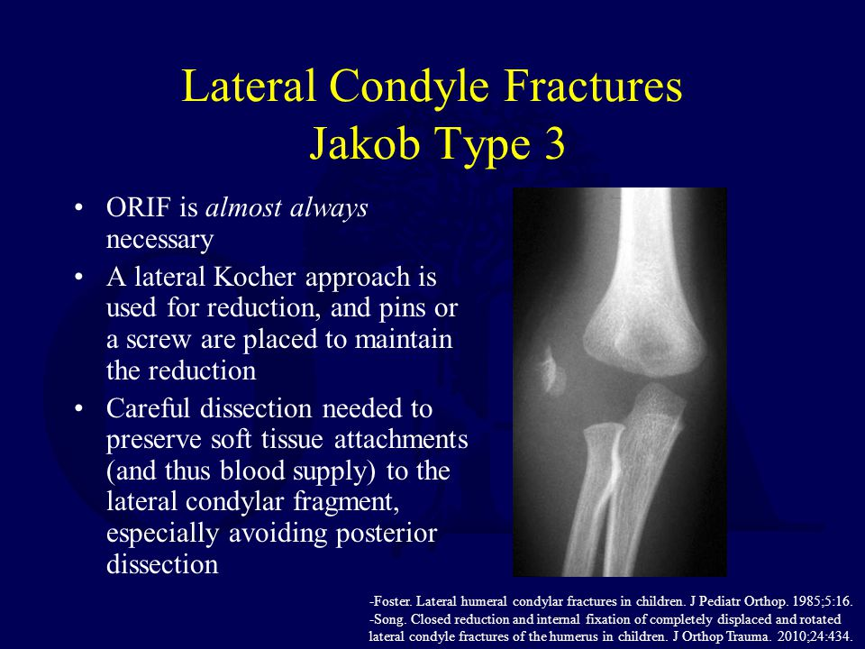 Lateral Condyle Fractures Jakob Type 3