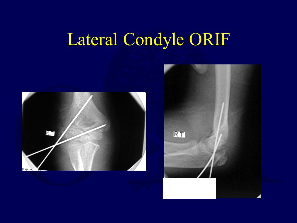 Lateral Condyle ORIF