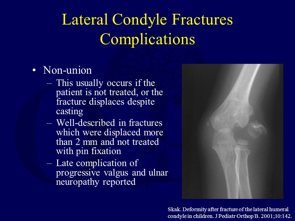 Lateral Condyle Fractures Complications