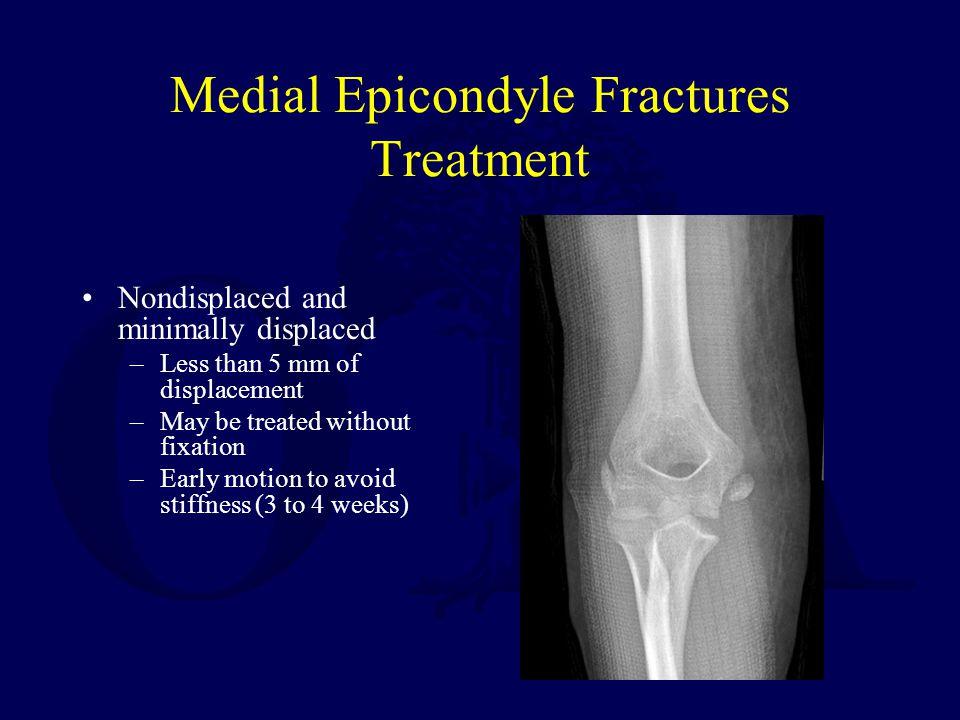Medial Epicondyle Fractures Treatment