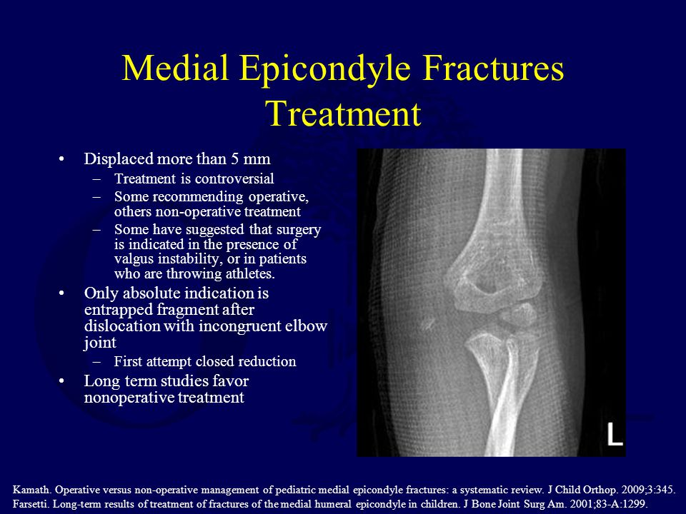 Medial Epicondyle Fractures Treatment