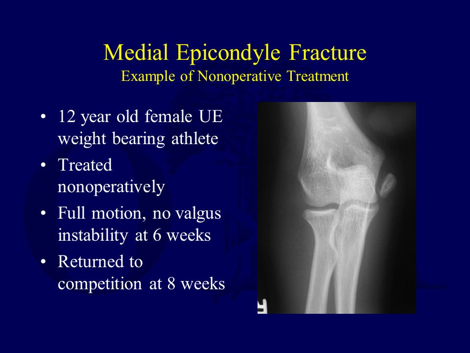 Medial Epicondyle Fracture Example of Nonoperative Treatment