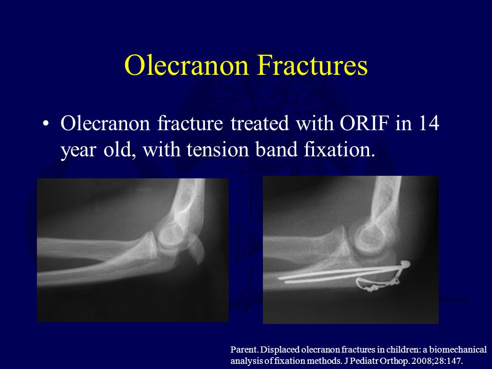 Olecranon Fractures Olecranon fracture treated with ORIF in 14 year old, with tension band fixation.