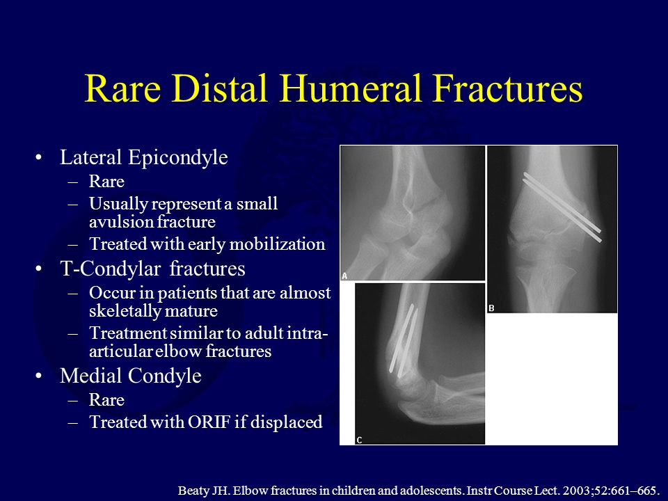 Rare Distal Humeral Fractures