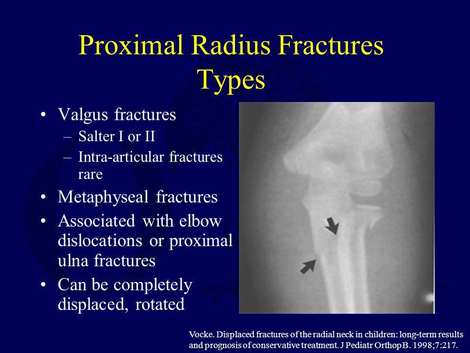 Proximal Radius Fractures Types